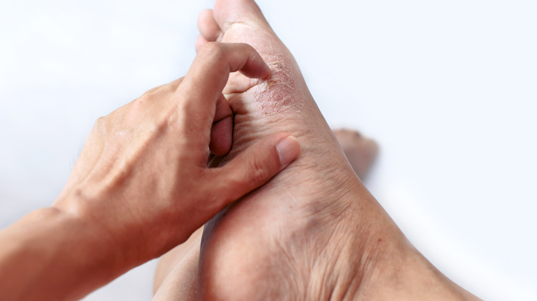athlete's foot itchy foot