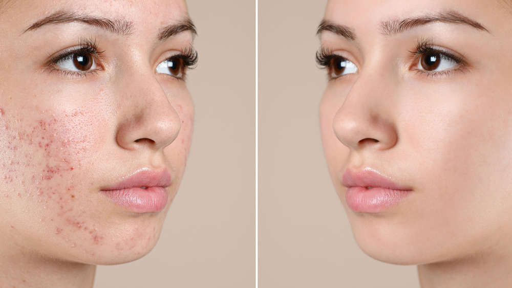 The Clever Way To Cover A Scar With Makeup