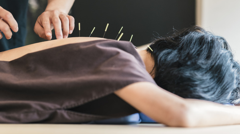 The truth about acupuncture